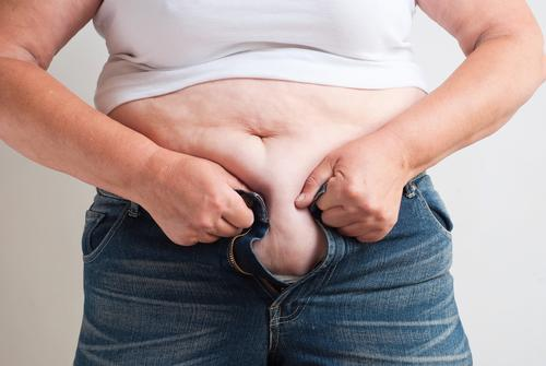 Obesity docs must disregard 'hurt feelings', says specialist