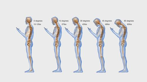 Looking down at your smartphone exerts 27kg on your neck