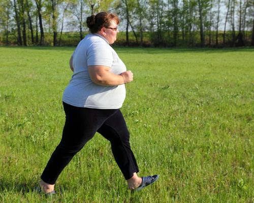 Exercise reduces risk of atrial fibrillation in severely obese people